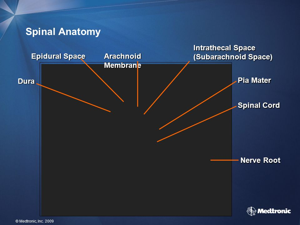15 © Medtronic, Inc. 2009 Spinal Anatomy Spinal Cord Intrathecal Space (Subarachnoid Space) Epidural Space Pia Mater Dura Arachnoid Membrane Nerve Roo