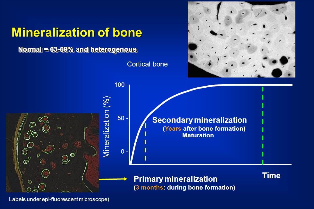 Time 100 - 50 - 0 - Mineralization (%) Primary mineralization (3 months: during bone formation) Cortical bone Secondary mineralization (Years after bone formation) Maturation Labels under epi-fluorescent microscope) Mineralization of bone Normal = 63-68% and heterogenous