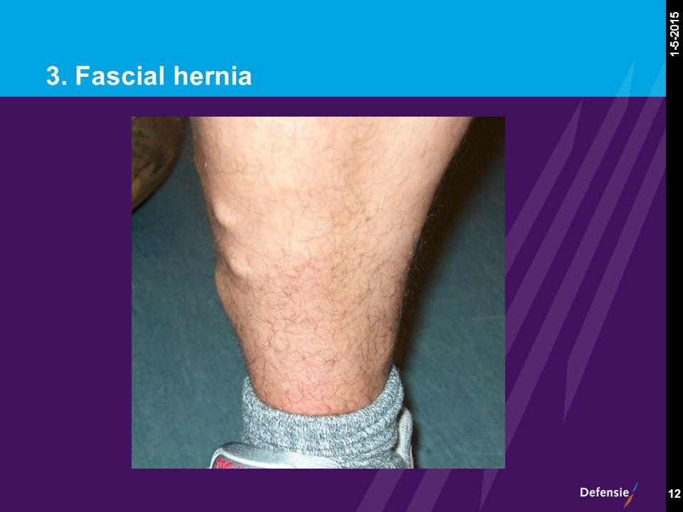 1-5-2015 12 3. Fascial hernia