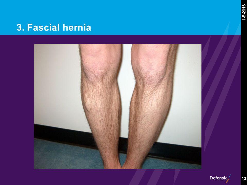 1-5-2015 13 3. Fascial hernia