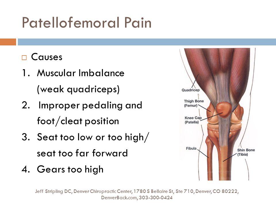 Patellofemoral Pain Jeff Stripling DC, Denver Chiropractic Center, 1780 S Bellaire St, Ste 710, Denver, CO 80222, DenverBack.com, 303-300-0424  Cause