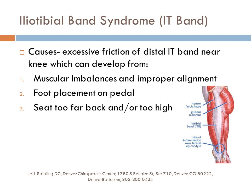 Iliotibial Band Syndrome (IT Band) Jeff Stripling DC, Denver Chiropractic Center, 1780 S Bellaire St, Ste 710, Denver, CO 80222, DenverBack.com, 303-300-0424  Causes- excessive friction of distal IT band near knee which can develop from: 1.
