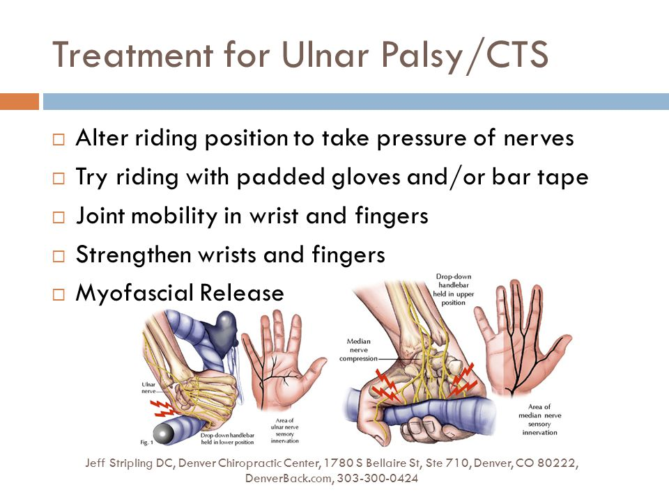 Treatment for Ulnar Palsy/CTS Jeff Stripling DC, Denver Chiropractic Center, 1780 S Bellaire St, Ste 710, Denver, CO 80222, DenverBack.com, 303-300-0424  Alter riding position to take pressure of nerves  Try riding with padded gloves and/or bar tape  Joint mobility in wrist and fingers  Strengthen wrists and fingers  Myofascial Release