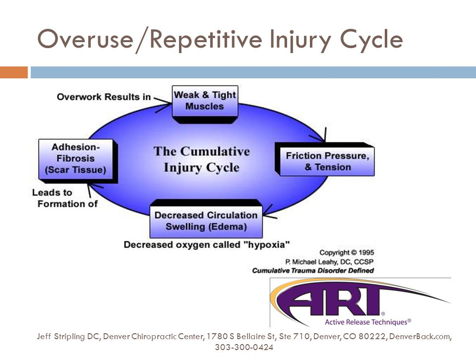 Overuse/Repetitive Injury Cycle Jeff Stripling DC, Denver Chiropractic Center, 1780 S Bellaire St, Ste 710, Denver, CO 80222, DenverBack.com, 303-300-