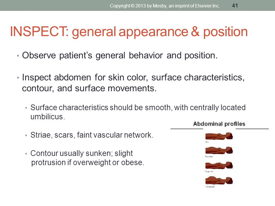 INSPECT: general appearance & position Observe patient's general behavior and position. Inspect abdomen for skin color, surface characteristics, conto