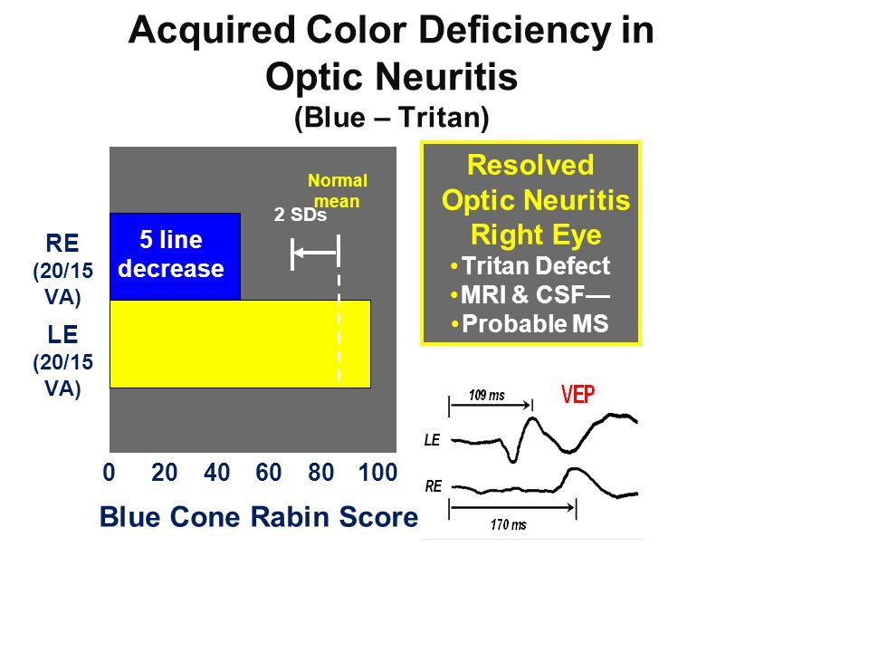 Acquired Color Deficiency in Optic Neuritis (Blue – Tritan) 020406080100 Blue Cone Rabin Score RE (20/15 VA) LE (20/15 VA) 2 SDs 5 line decrease Norma