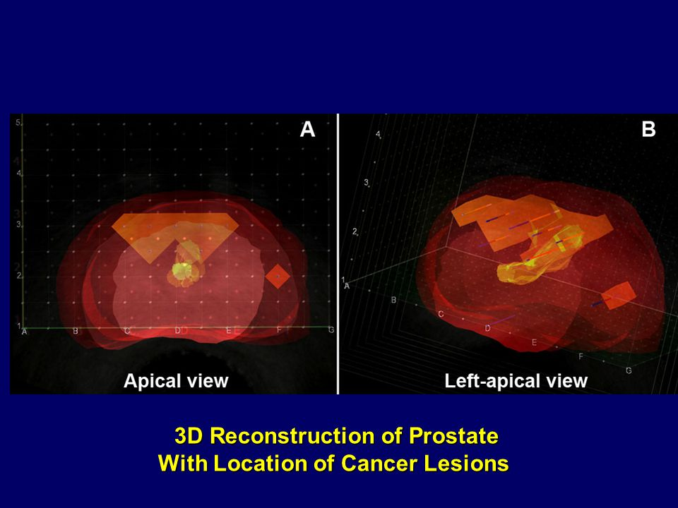 3D Reconstruction of Prostate With Location of Cancer Lesions