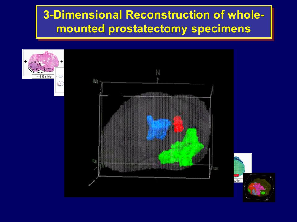 3-Dimensional Reconstruction of whole- mounted prostatectomy specimens