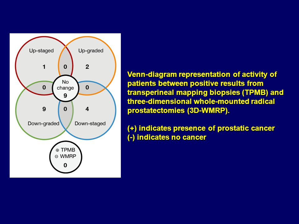 Venn-diagram representation of activity of patients between positive results from transperineal mapping biopsies (TPMB) and three-dimensional whole-mounted radical prostatectomies (3D-WMRP).
