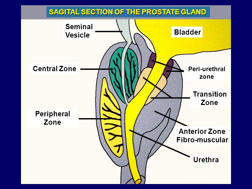 SAGITAL SECTION OF THE PROSTATE GLAND Seminal Vesicle Central Zone Bladder Peri-urethral zone Anterior Zone Fibro-muscular Peripheral Zone Transition Zone Urethra