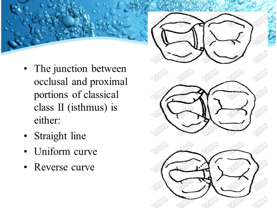 The junction between occlusal and proximal portions of classical class II (isthmus) is either: Straight line Uniform curve Reverse curve