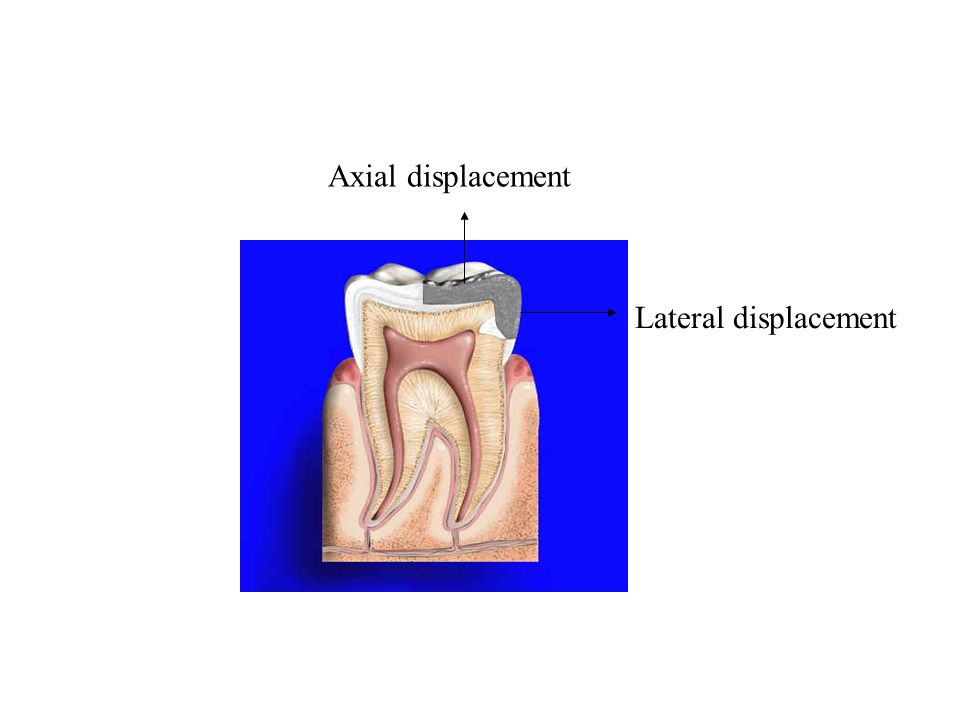 Axial displacement Lateral displacement