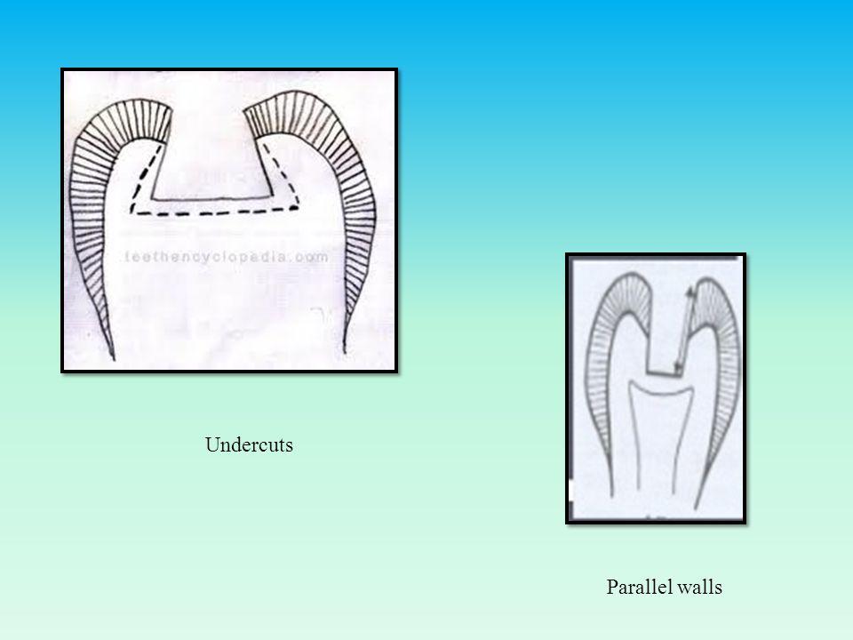 Undercuts Parallel walls