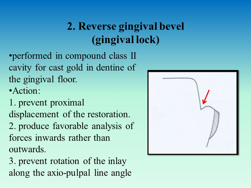 2. Reverse gingival bevel (gingival lock) performed in compound class II cavity for cast gold in dentine of the gingival floor. Action: 1. prevent pro