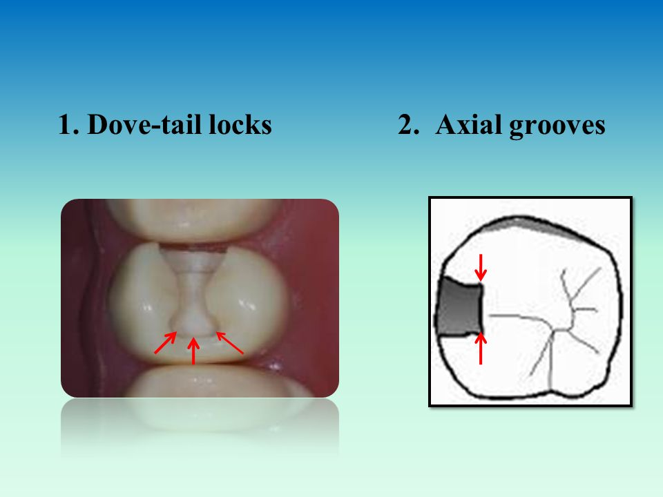 1. Dove-tail locks 2. Axial grooves