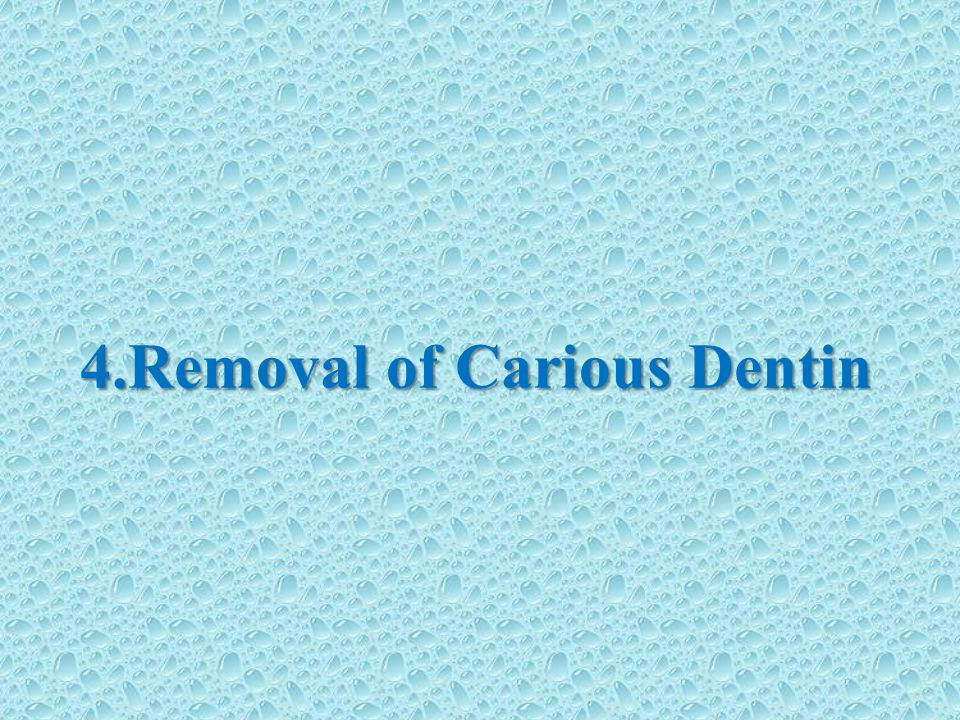 4.Removal of Carious Dentin