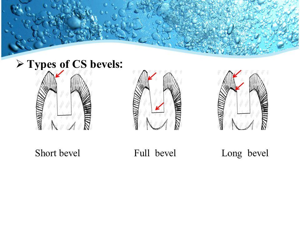 Types of CS bevels: Short bevelFull bevelLong bevel