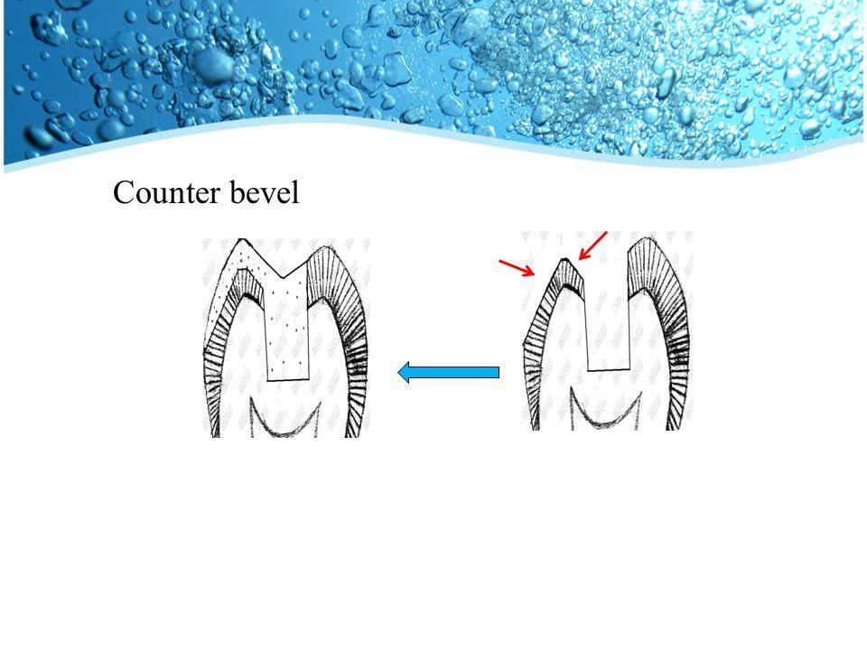 Counter bevel