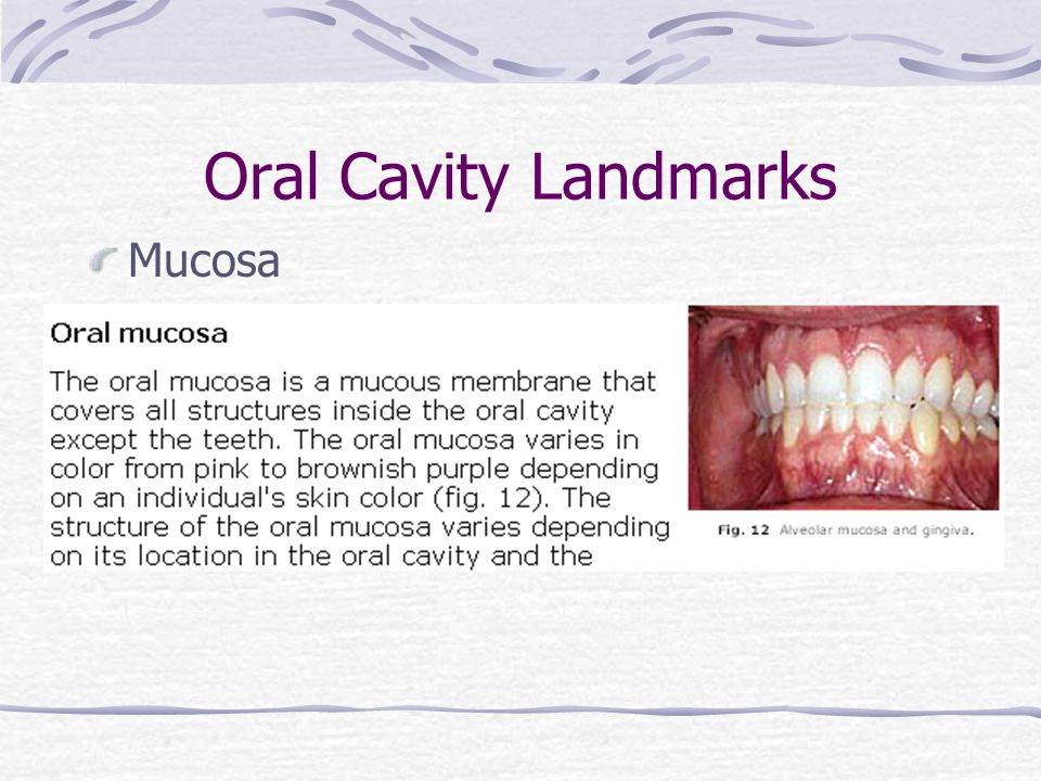 Oral Cavity Landmarks Mucosa