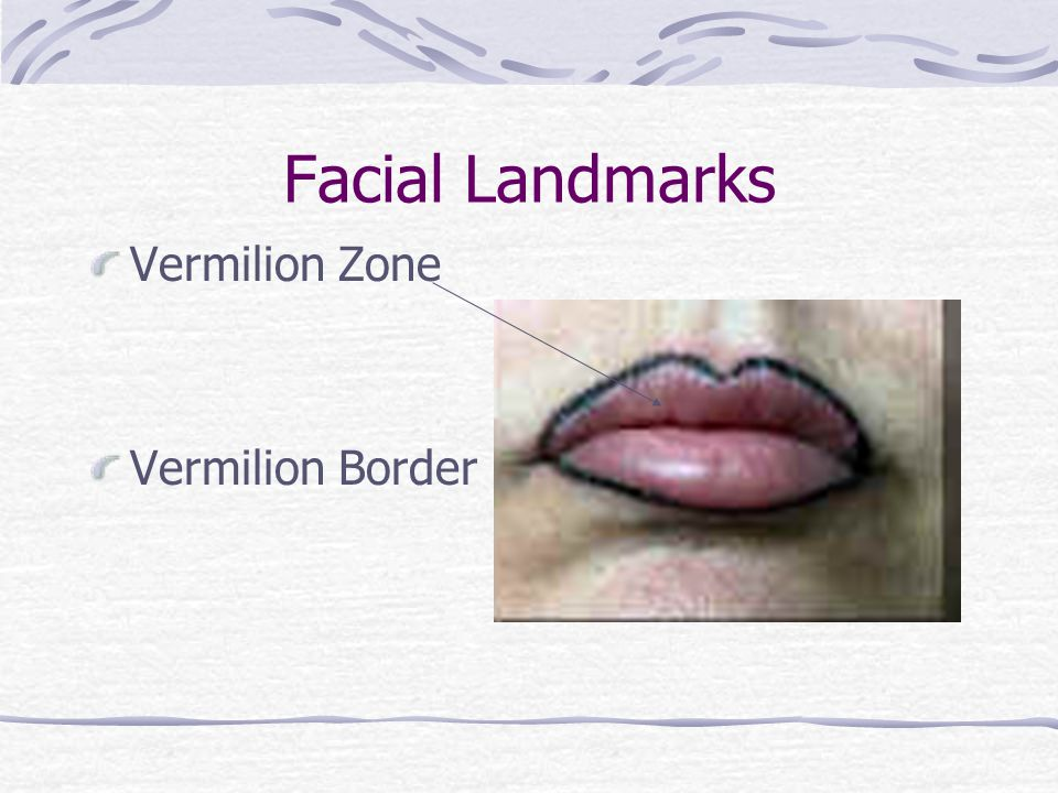 Facial Landmarks Labial Commissures Labio-mental groove Md2Un1 FacLdmk.pptxhttp://www.youtube.com/wat ch?v=jQJsPGD1t0g