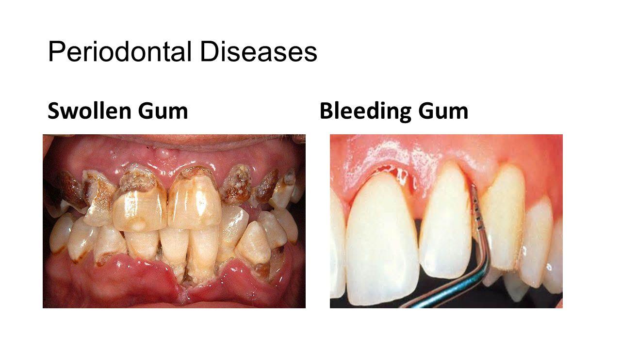 Periodontal Diseases Swollen GumBleeding Gum