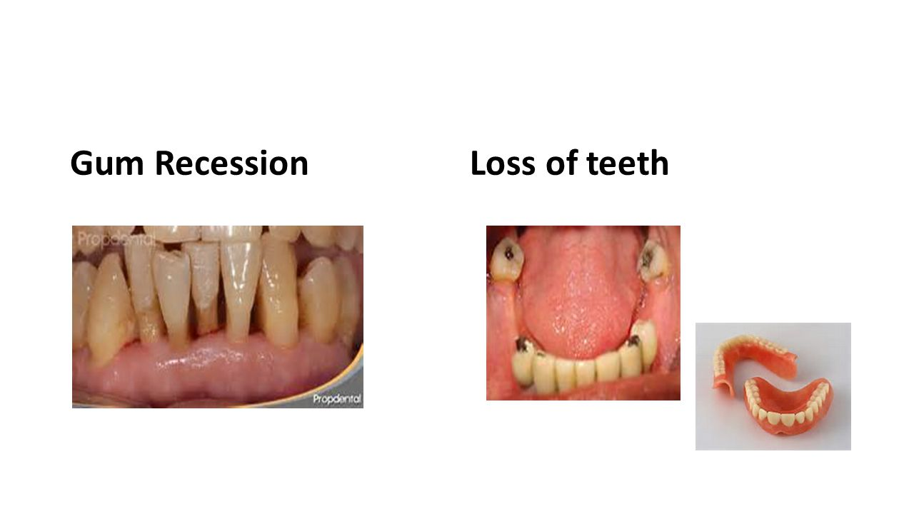 Gum RecessionLoss of teeth