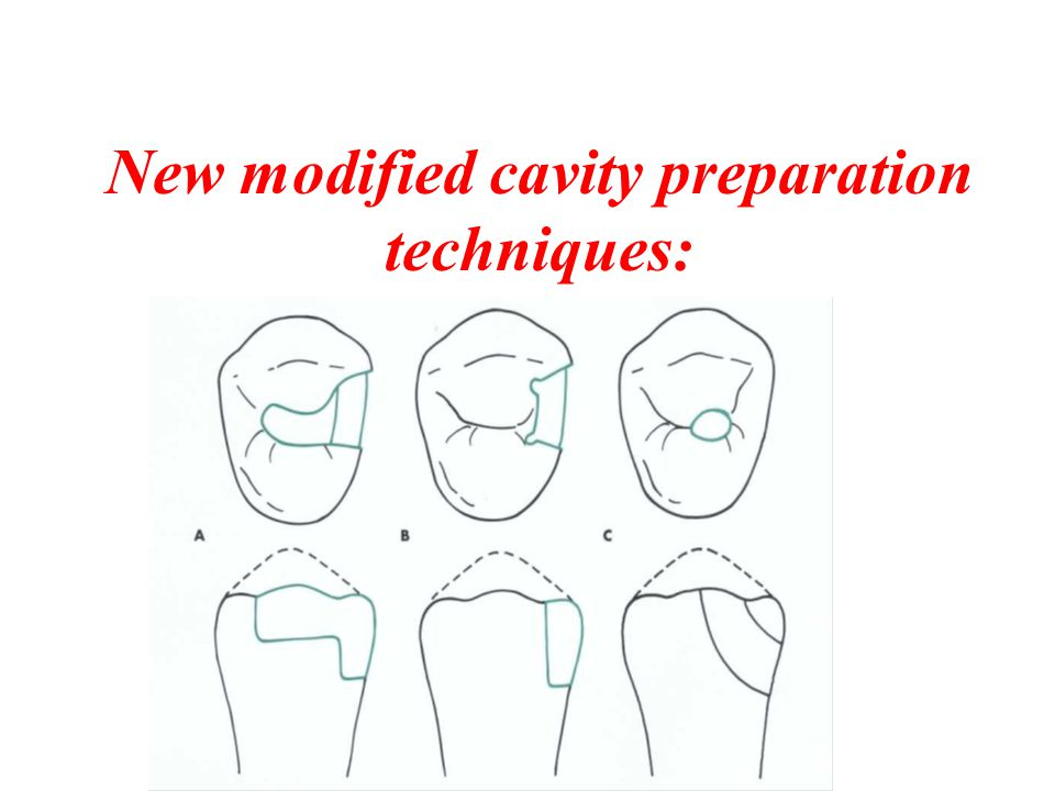 New modified cavity preparation techniques: