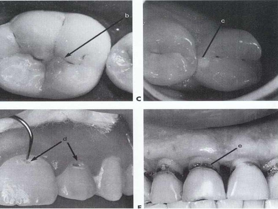 B. Slots: - In gingival floor - Bur 1/2, 1/4 - 0.5 - 1 mm deep - 2 – 3 mm length facio lingually