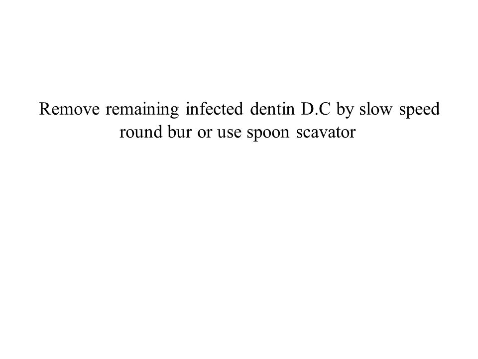 Remove remaining infected dentin D.C by slow speed round bur or use spoon scavator