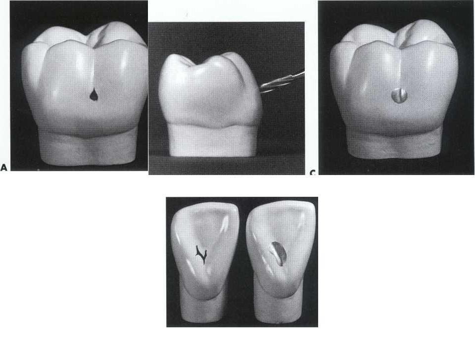 New modified cavity preparation techniques: