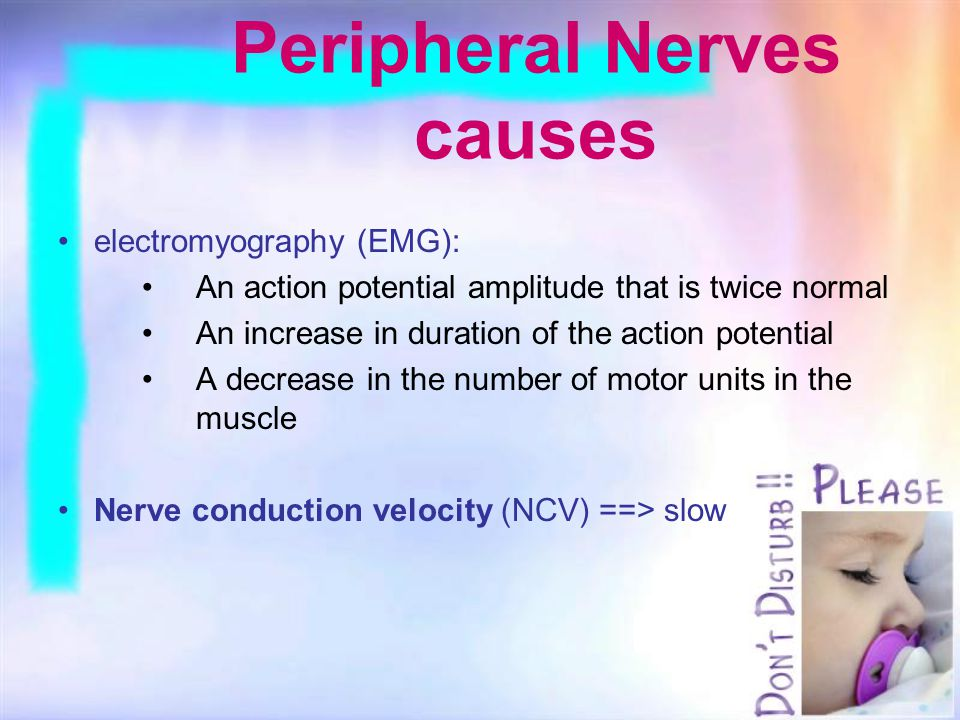 Peripheral Nerves causes electromyography (EMG): An action potential amplitude that is twice normal An increase in duration of the action potential A decrease in the number of motor units in the muscle Nerve conduction velocity (NCV) ==> slow