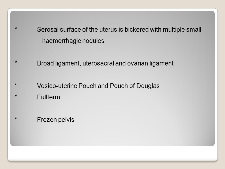 * Serosal surface of the uterus is bickered with multiple small haemorrhagic nodules * Broad ligament, uterosacral and ovarian ligament * Vesico-uteri