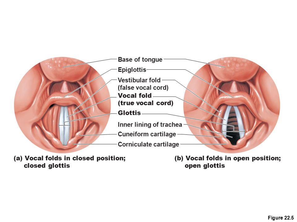 Figure 22.5 (a) Vocal folds in closed position; closed glottis (b) Vocal folds in open position; open glottis Base of tongue Epiglottis Vestibular fol