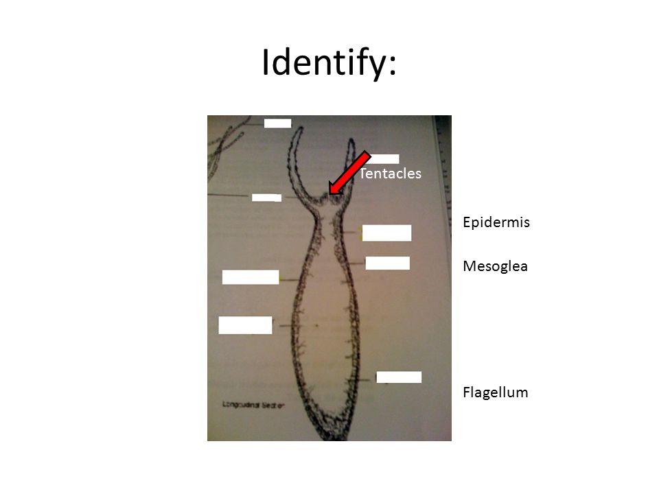 Identify: Tentacles Epidermis Mesoglea Flagellum