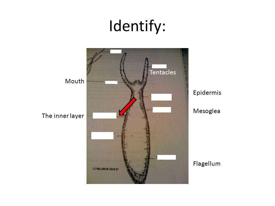 Identify: Tentacles Epidermis Mesoglea Mouth Flagellum The inner layer