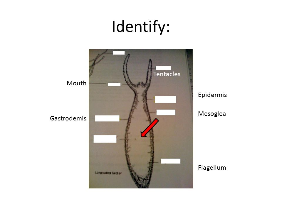 Identify: Tentacles Epidermis Mesoglea Mouth Flagellum Gastrodemis