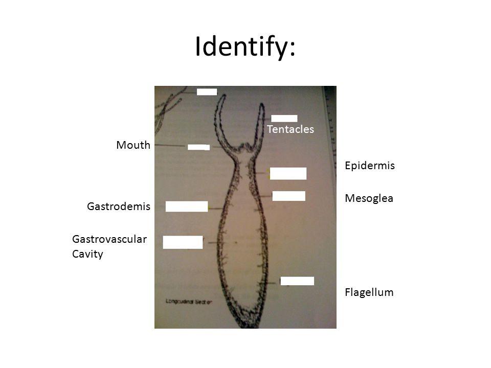 Identify: Tentacles Epidermis Mesoglea Mouth Flagellum Gastrodemis Gastrovascular Cavity