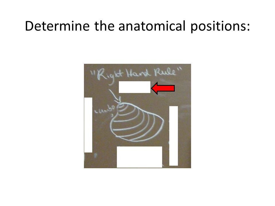 Determine the anatomical positions: