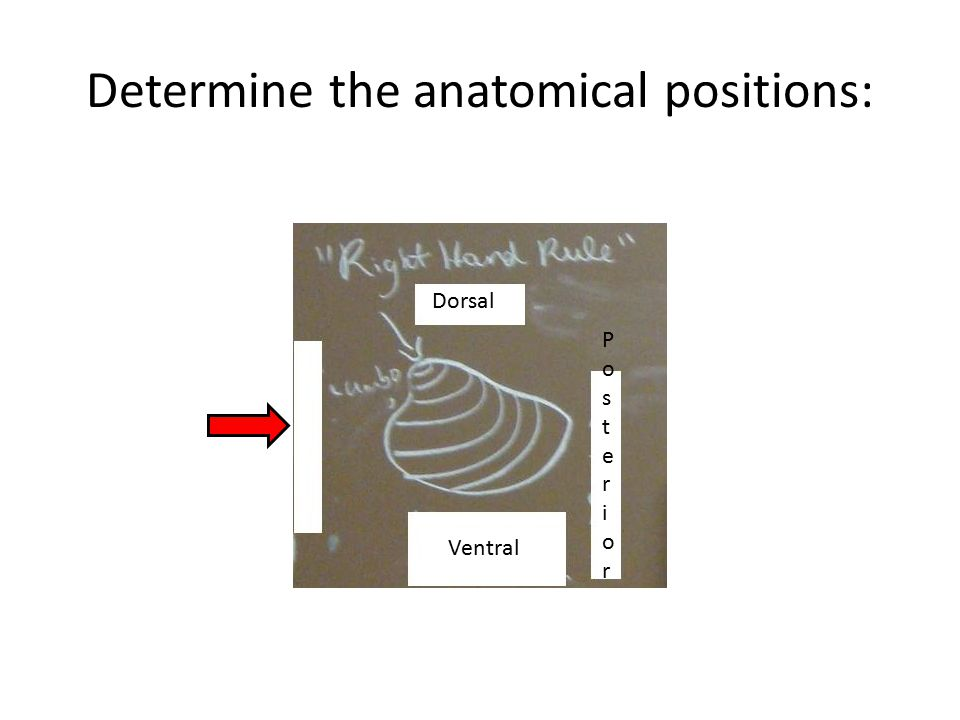 Determine the anatomical positions: Dorsal PosteriorPosterior Ventral