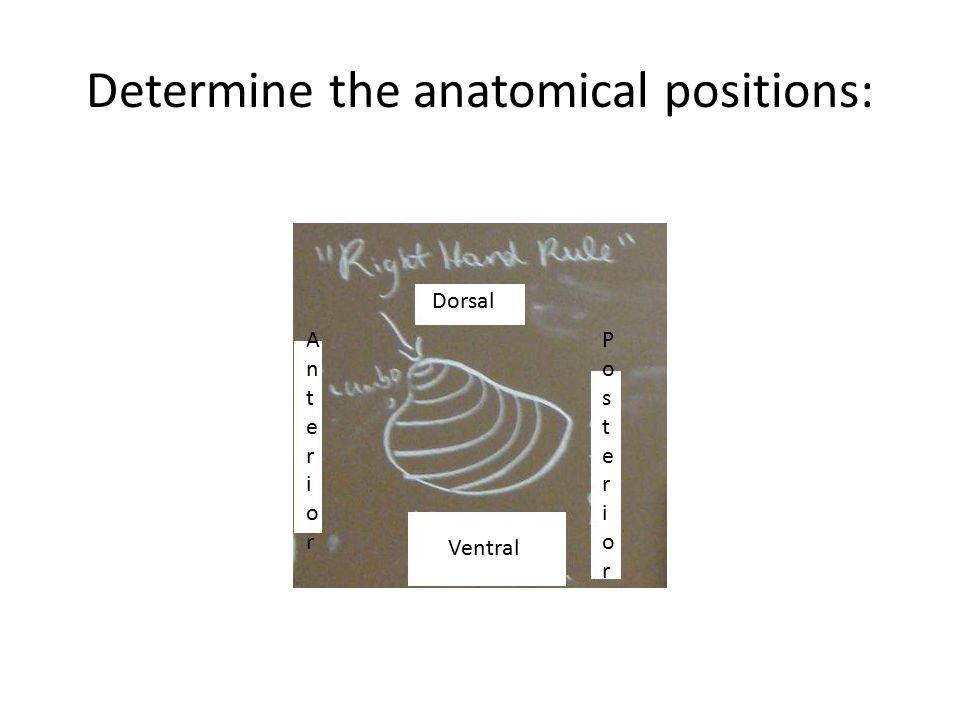 Determine the anatomical positions: Dorsal PosteriorPosterior Ventral AnteriorAnterior