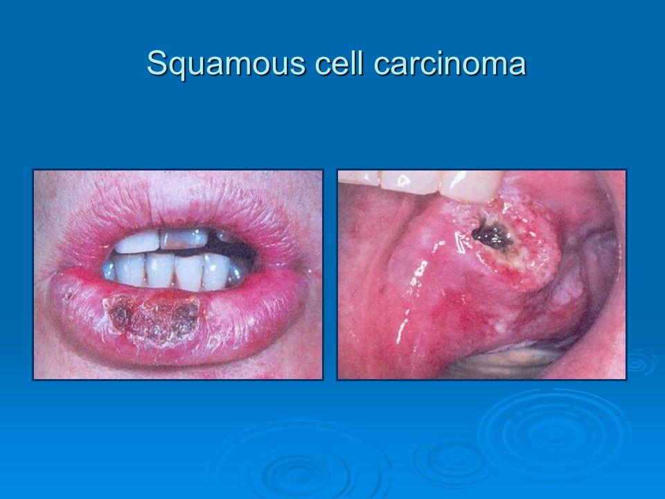 Squamous cell carcinoma Squamous cell carcinoma