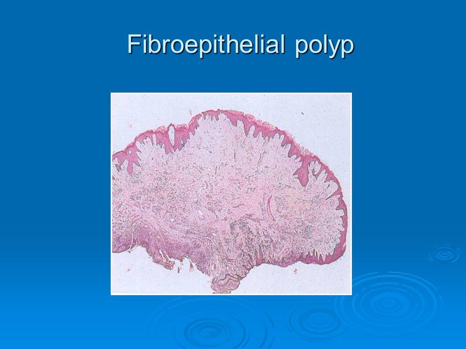 Fibroepithelial polyp Fibroepithelial polyp