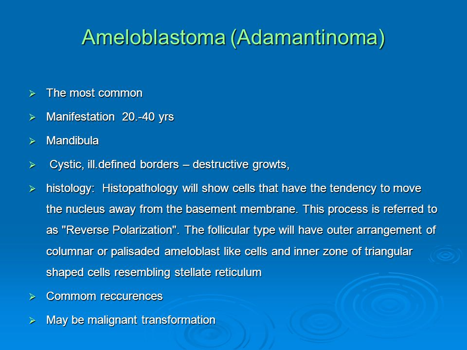 Ameloblastoma (Adamantinoma)  The most common  Manifestation 20.-40 yrs  Mandibula  Cystic, ill.defined borders – destructive growts,  histology: