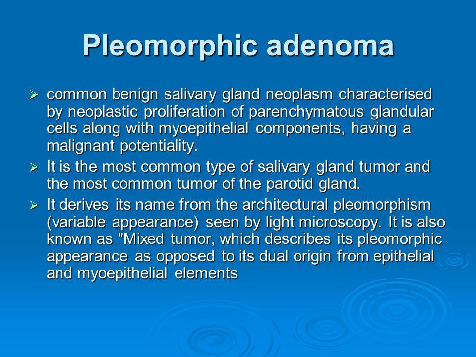 Pleomorphic adenoma  common benign salivary gland neoplasm characterised by neoplastic proliferation of parenchymatous glandular cells along with myo