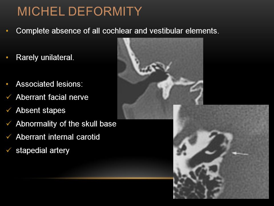 MICHEL DEFORMITY Complete absence of all cochlear and vestibular elements.