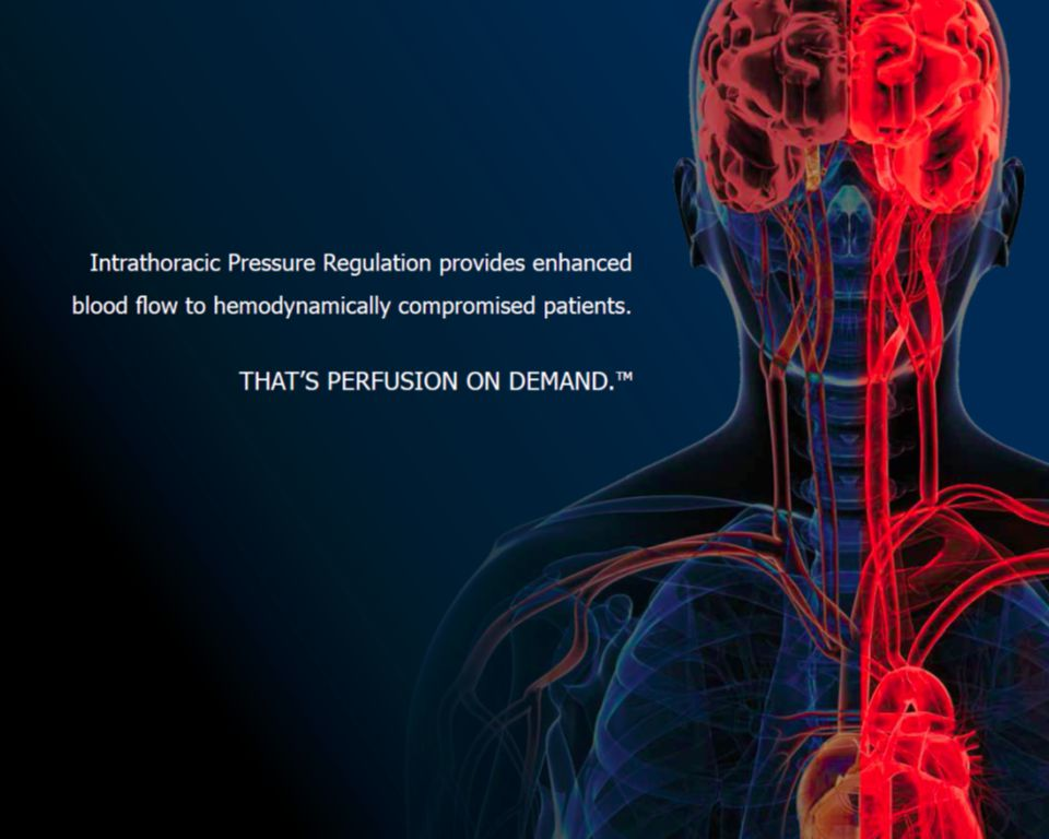 Intrathoracic Pressure Regulation (IPR)