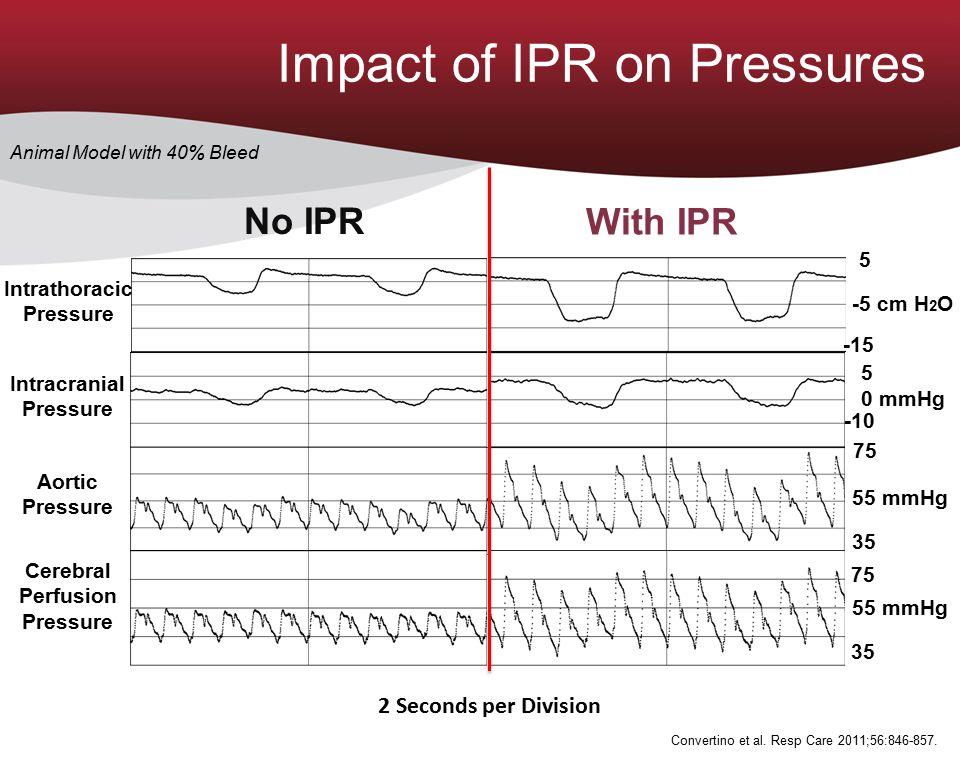 2 Seconds per Division Aortic Pressure Intracranial Pressure Intrathoracic Pressure Cerebral Perfusion Pressure No IPR 5 -10 0 mmHg 55 mmHg 75 35 -5 c