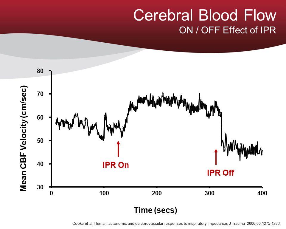 Time (secs) Mean CBF Velocity (cm/sec) IPR On IPR Off 4003002001000 30 40 50 60 70 80 Cooke et al. Human autonomic and cerebrovascular responses to in