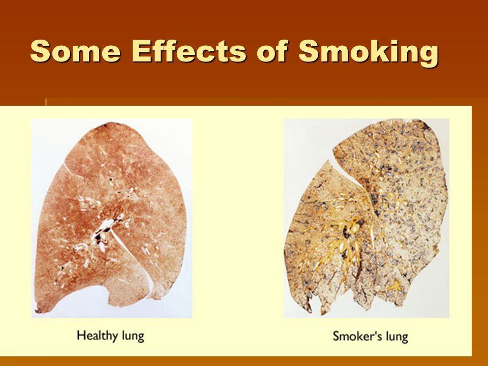 Some Effects of Smoking