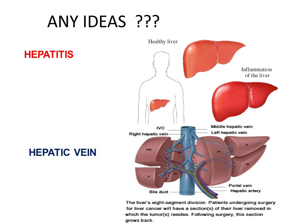 ANY IDEAS ??? HEPATITIS HEPATIC VEIN